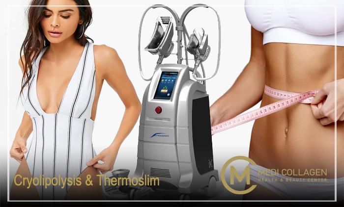 Cryolipolysis & Τhermoslim για ένα πρόγραμμα λιποαφαίρεσης και απώλεια βάρους στο MediCollagen στο κέντρο του Πειραιά (από 25,90€).