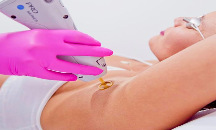 Σύνταγμα,οριστική αποτρίχωση Candela Gentlelaser Max Pro ,Velvet Skin Laser Experts,τιμή 45€.