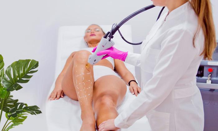 Σύνταγμα,οριστική αποτρίχωση Candela Gentlelaser Max Pro ,Velvet Skin Laser Experts,τιμή 19€.